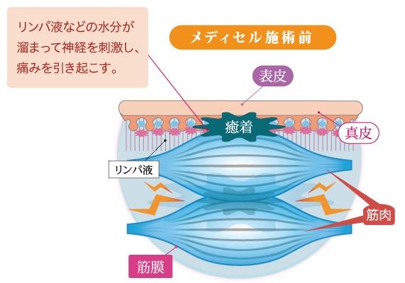 筋膜リリースの流れ2